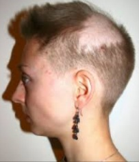 Lady with bald patch from Trichotillomania